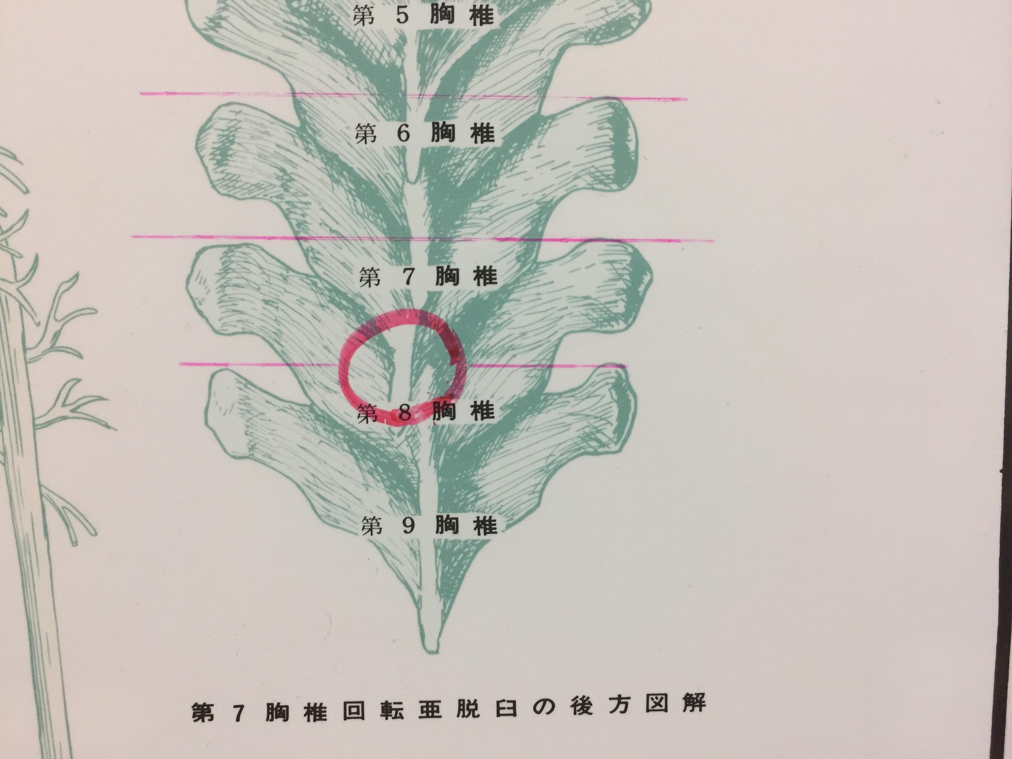 8胸椎.jpg